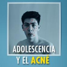 La adolescencia y el acné